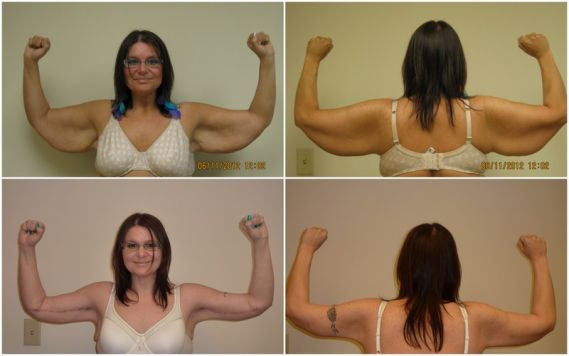 Arm Reduction Before and After