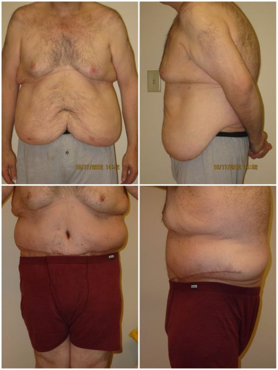 Panniculectomy Before and After