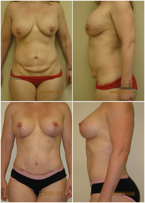 Combined Procedures Before and After
