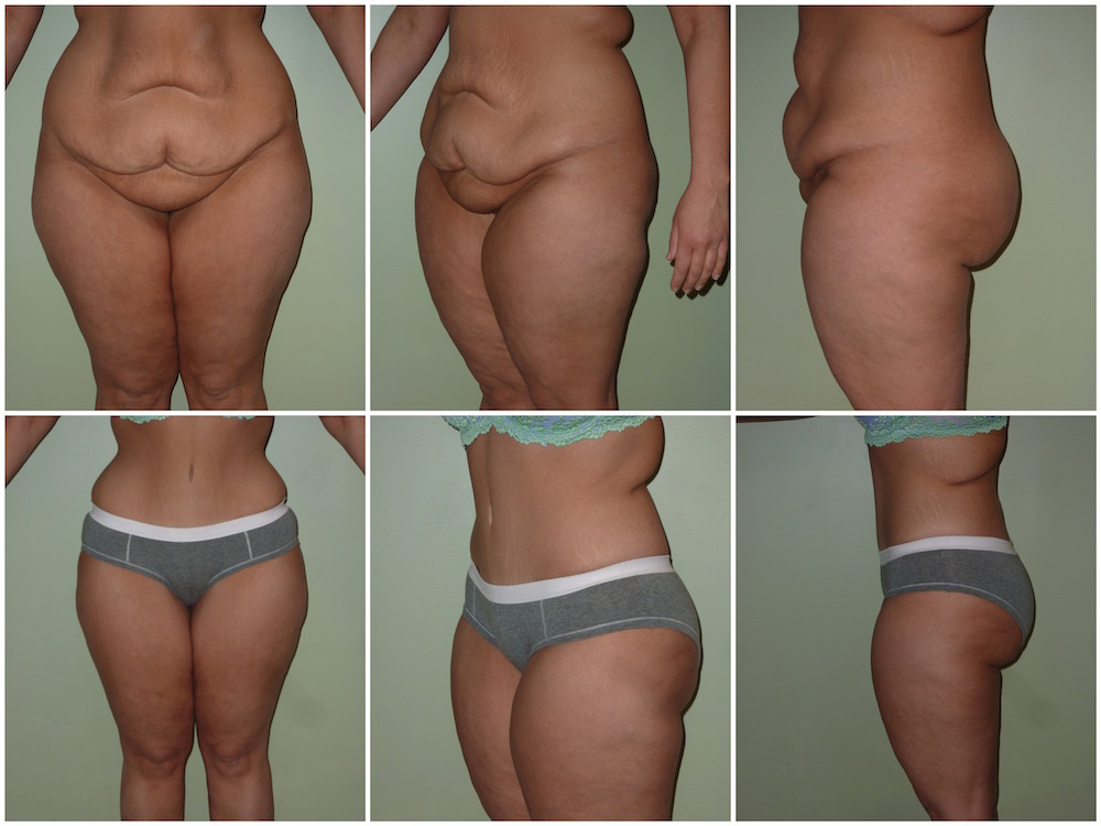 Abdominoplasty Patient 15