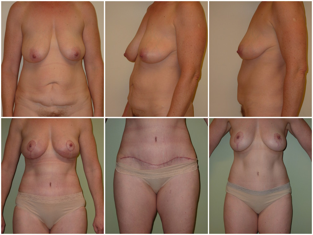 Abdominoplasty Patient 17