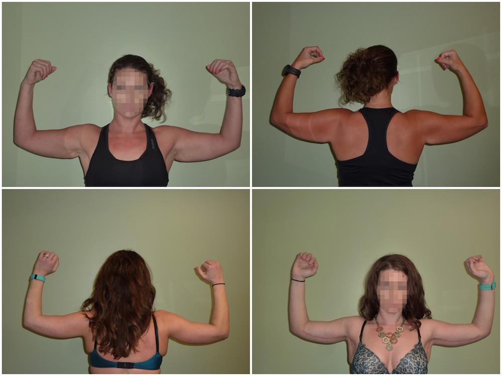 Arm Reduction Patient 3