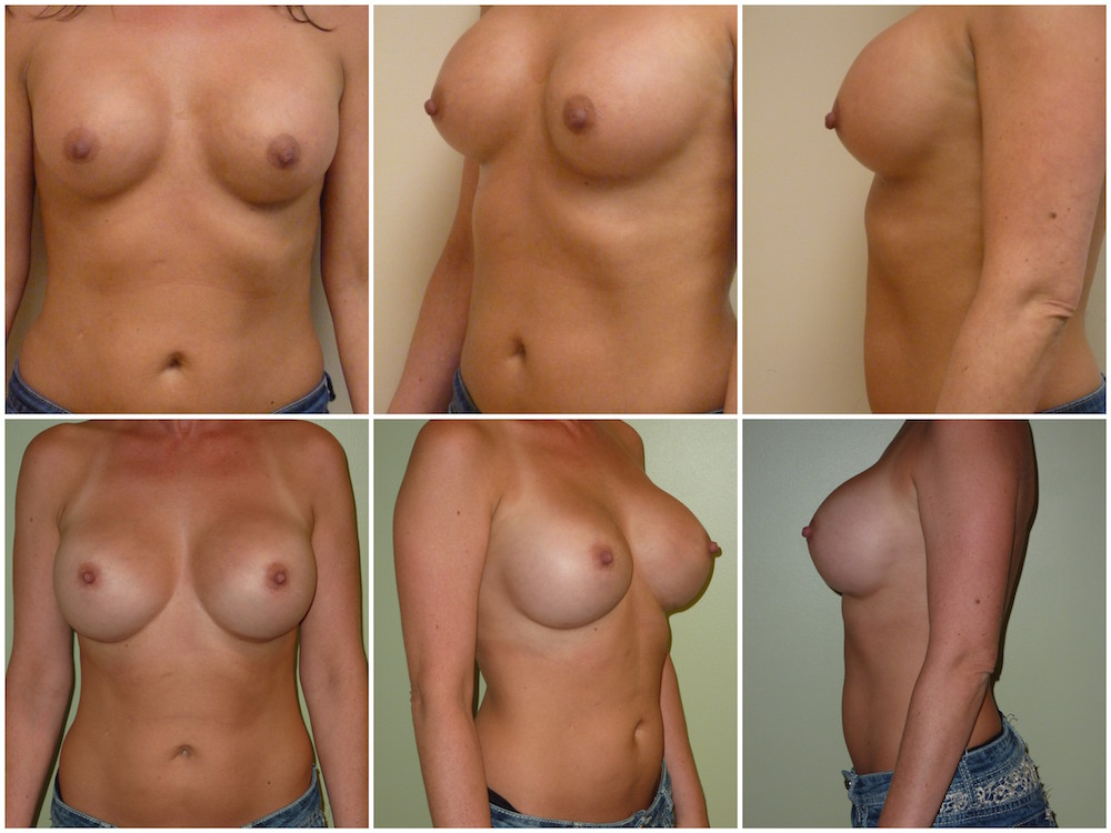 Breast Implant Removal Replacement Patient 11