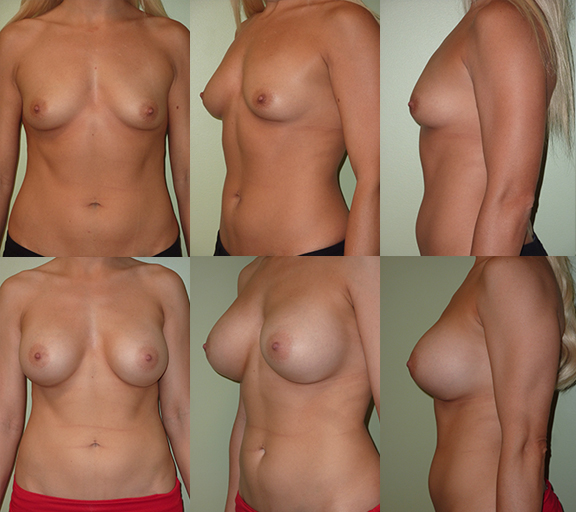 Breast Augmentation with 450cc high profile silicone gel implants, age 26
