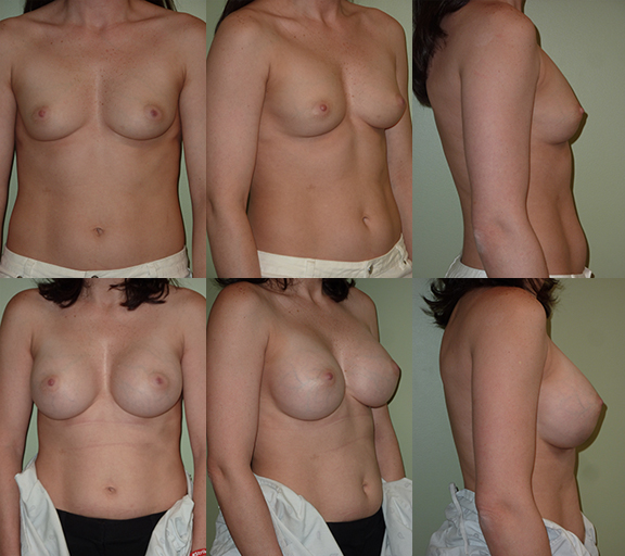 Breast Augmentation with 350cc high profile silicone gel implants, age 33