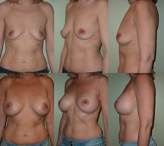 Breast Augmentation with 425cc high profile silicone gel implants, age 46