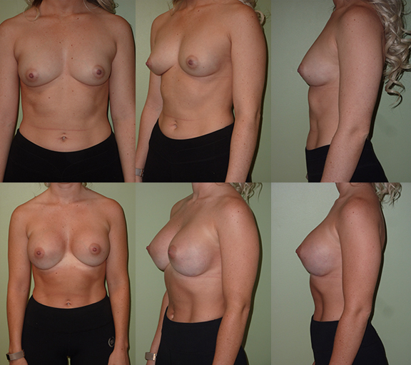 Breast Augmentation with 350cc high profile silicone gel implants, age 24