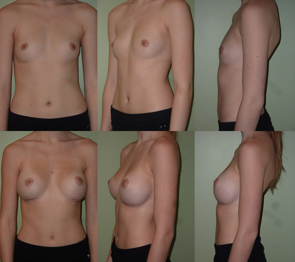 Breast Augmentation with 325cc moderate plus profile silicone gel implants, age 19
