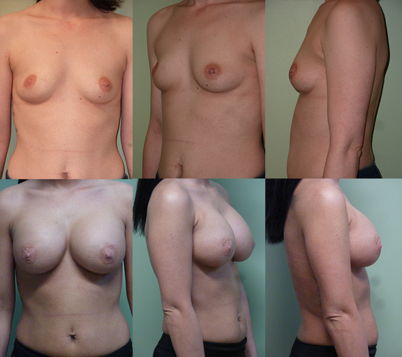 Breast Augmentation with 375cc high profile silicone gel implants, age 32