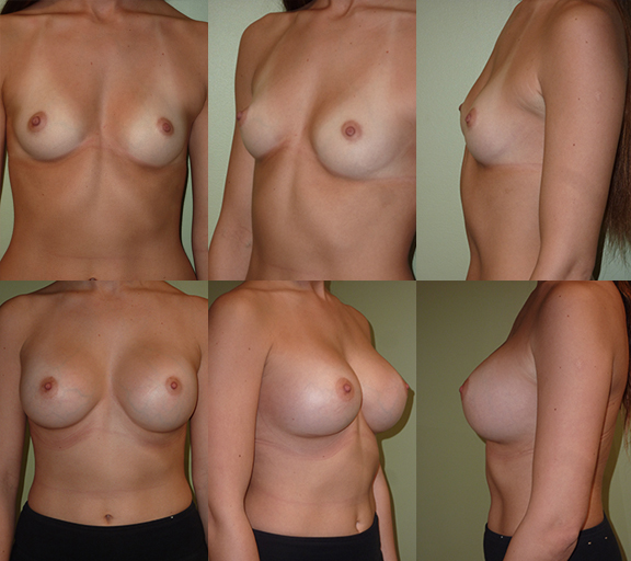 Breast Augmentation with 450cc high profile silicone gel implants, age 23