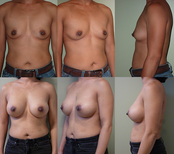 Breast Augmentation with 400cc high profile silicone gel implants, age 41