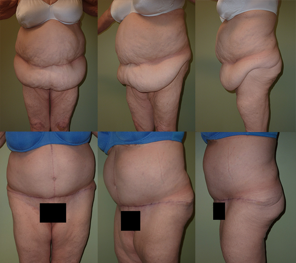 Age 68, 1 child, pre-op weight 204 lbs Abdominoplasty