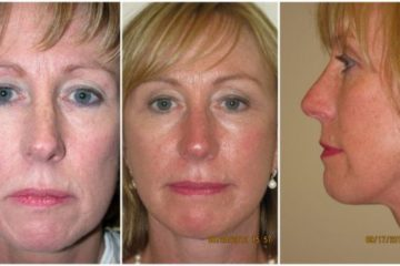 Face and neck lift, age 51