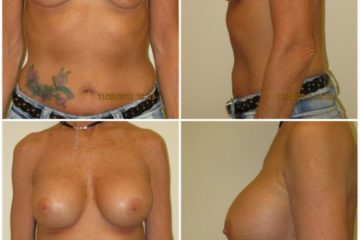 Replacement with 400cc silicone gel implants, age 50