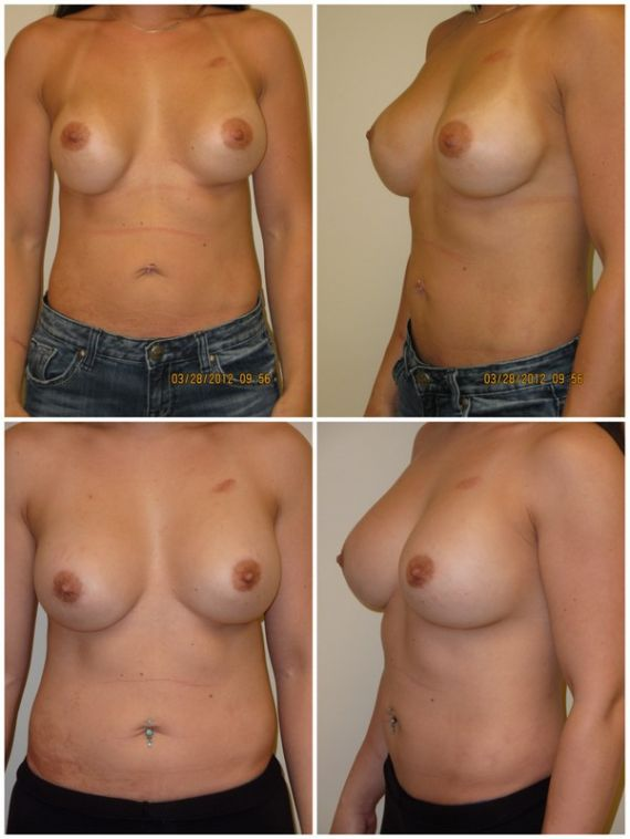 Replacement with 500cc silicone gel implants, age 33