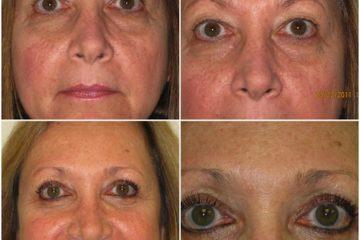 Blepharoplasty, Age 58, upper and lower eyelids