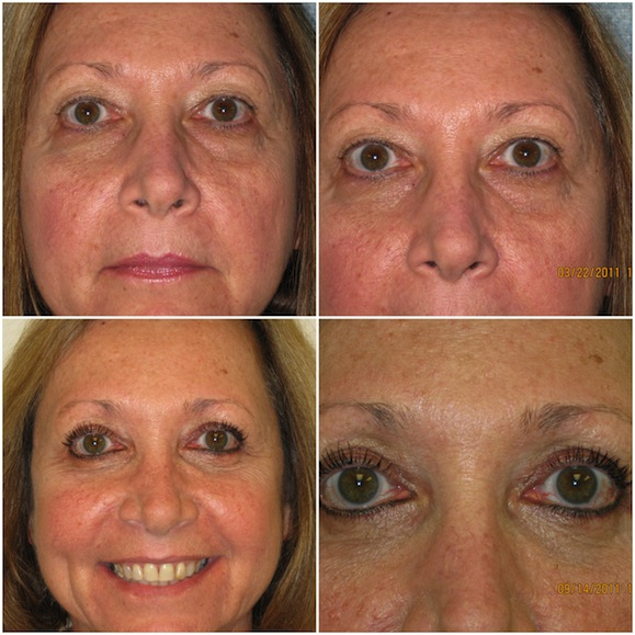 Blepharoplasty, Age 58, upper and lower eyelids