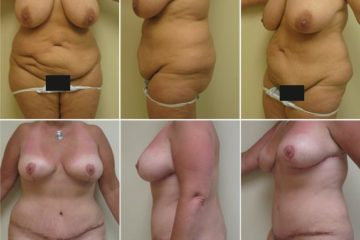 Breast Reduction w/ Abdominoplasty, Age 44