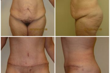 Abdominoplasty and breast augmentation with 400cc silicone gel implants, age 46