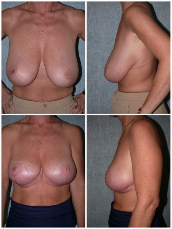 Bilateral reduction mammaplasty, age 44