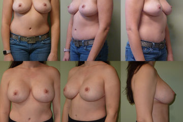 Breast augmentation with 405cc moderate plus profile silicone gel implants, age 37