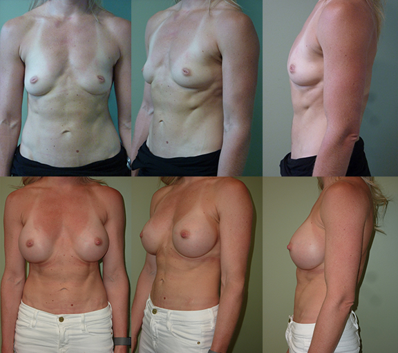 Breast augmentation with 400cc high profile silicone gel implants, age 34