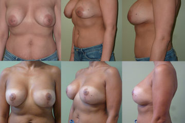 Breast implant replacement with 350cc moderate plus profile silicone gel implants, age 42