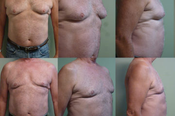 Bilateral gynecomastia with liposuction, age 65