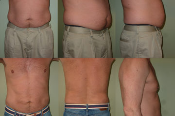 Liposuction to abdomen and bilateral flanks, age 52