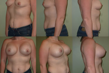 Breast augmentation with 600cc high profile silicone gel implants, age 32