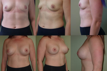 Breast augmentation with 400cc high profile silicone gel implants, age 32