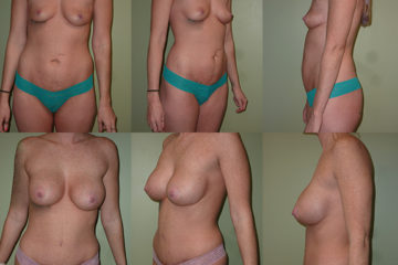 Breast augmentation with asymmetrical implants 450cc on right and 425cc on left high profile silicone gel implants, age 29