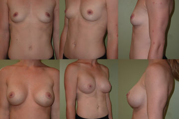 Breast augmentation with 400cc moderate plus profile silicone gel implants, age 26