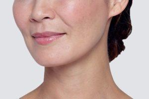 Restylane Lyft Face